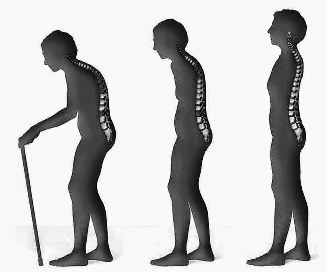 Osteoporosis Di Usia Muda? Ini Dia Penyebabnya!