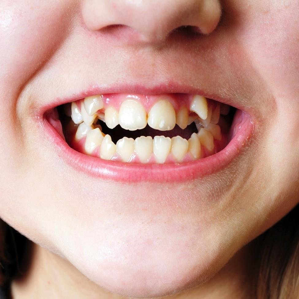 Cegah Pengeroposan Gigi Si Kecil dengan Susu
