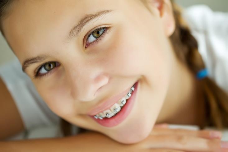 Kapan Sih Kawat Gigi Dibutuhkan?